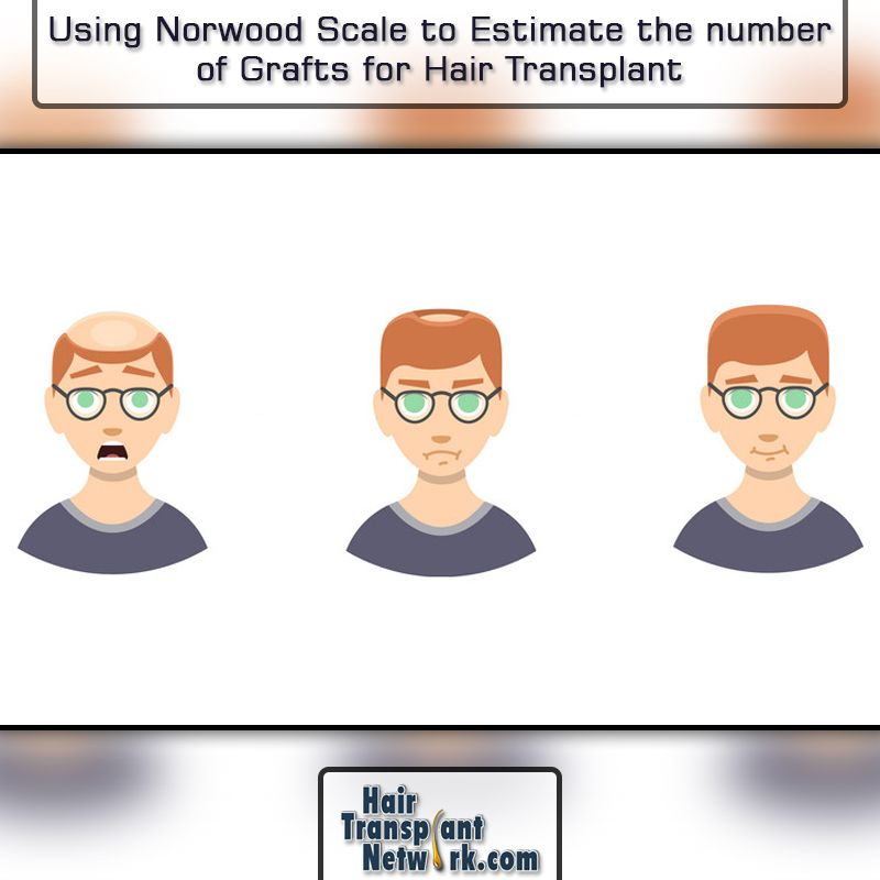 Using The Norwood Scale To Estimate The Number Of Grafts For Hair Transplant Hair Transplant Norwood Scale Hair Transplant Surgery