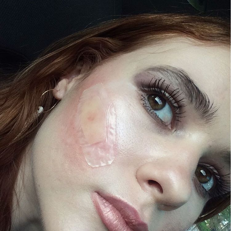 Hydrocolloid bandages for cystic acne long lasting