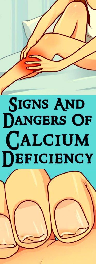 Signs & Dangers Of Calcium Deficiency!!!!  #lifestyle  #fitness