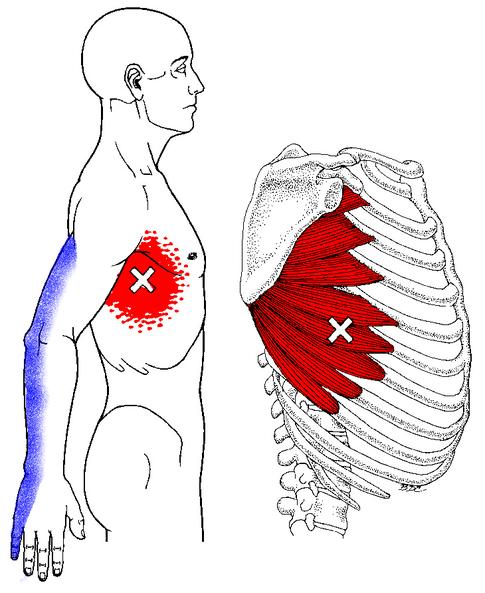 Dolor entre las costillas debajo del pecho