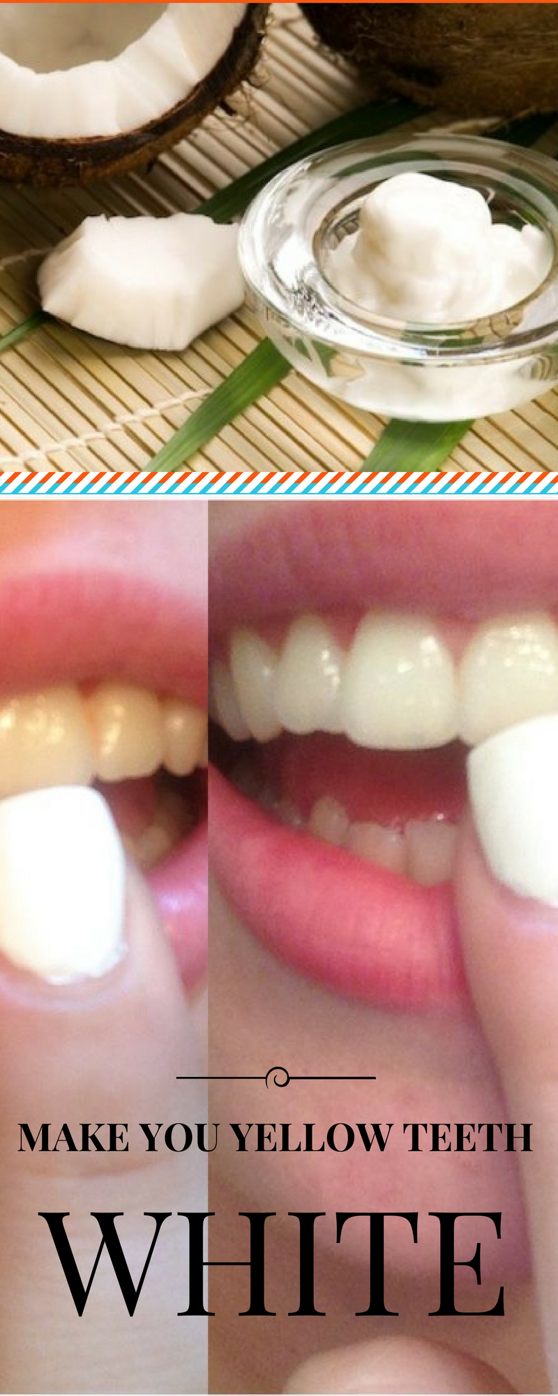Now you can make your yellow teeth white in only minutes