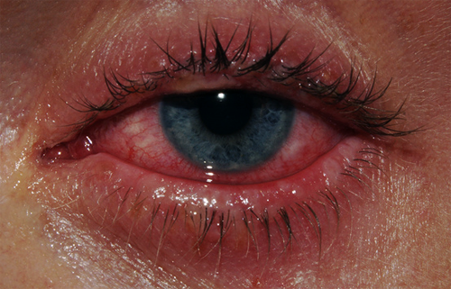 Tired Aesthetic Eyes Crying Aesthetic Crying Eyes
