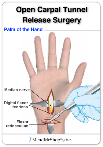 Carpal Tunnel Surgery During Open Carpal Tunnel Release Surgery The