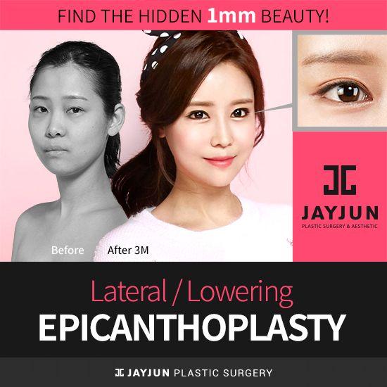 korea eyelid surgery korea caucasian double eyelid surgery