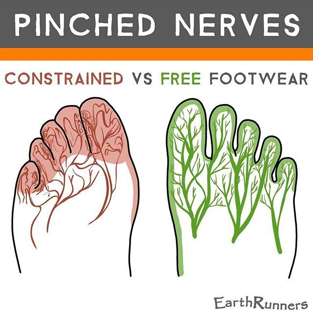 Do your feet ever get numb in shoes? There are over 7000 nerve