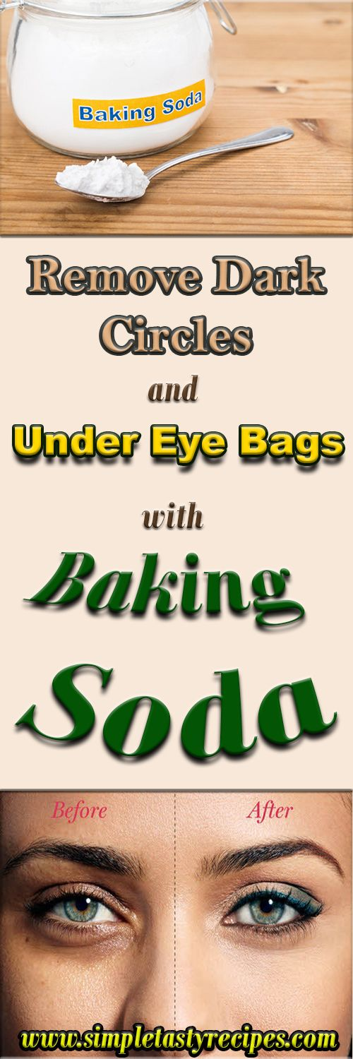 Remove Dark Circles And Under Eye Bags With Baking Soda #darkcircle