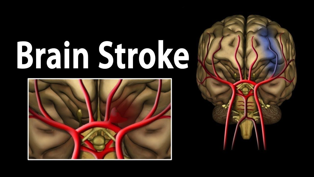 Stem Cell Therapy for Stroke patients | Great articles / Interesting ...