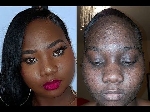 Pin On Covering Acne With Makeup For Black Woman