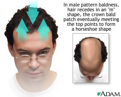Is There Any Way To Stop Male Pattern Baldness
