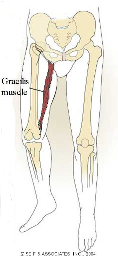 Gracilis Pain | gracilis syndrome is a condition that causes pain ...