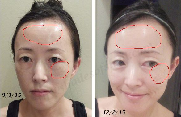 Curology Tretinoin And Azelaic Acid B Amp A Korean Skincare