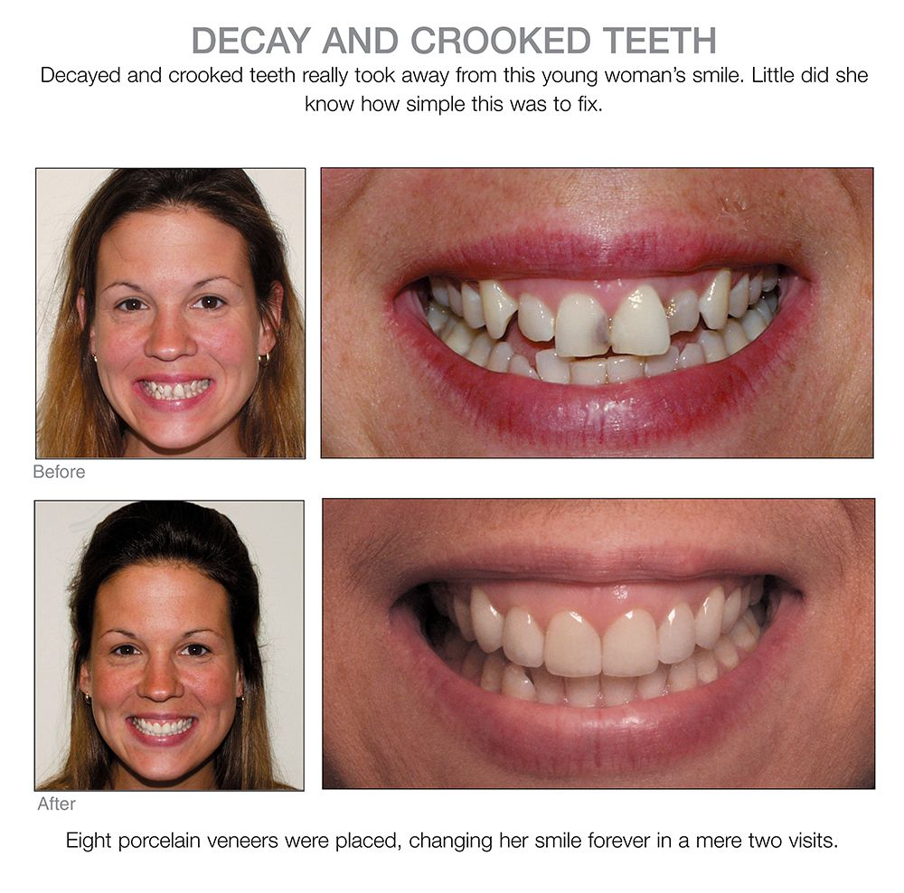 Crooked teeth gone | EW | Veneers teeth, Dental veneers, Crooked teeth
