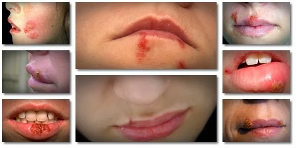 Natural Cold Sore Remedies To Get Rid Of Cold Sores