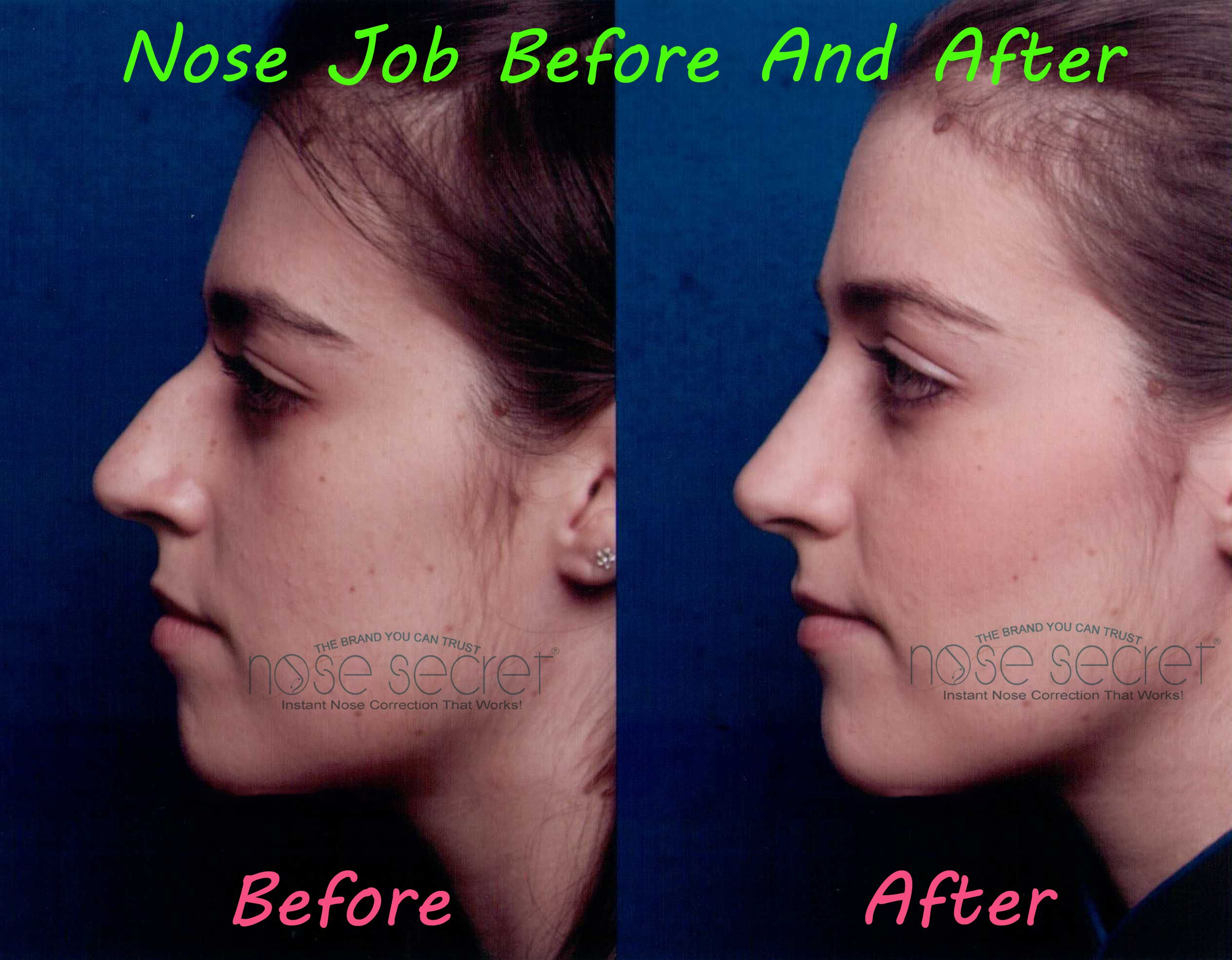 Nose Job Before And After Nosesecret Consists Of A Pair Of Curved And Comfortable Splints That You Place At The Inside Ed Nose Job Rhinoplasty Nose Jobs Nose