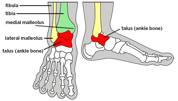 Graphic Showing Bones Of The Ankle With Labeling Of The Fibula Tibia Medial Malleolus Lateral Malleolus And Talus Broken Ankle Types Of Fractures Fractures