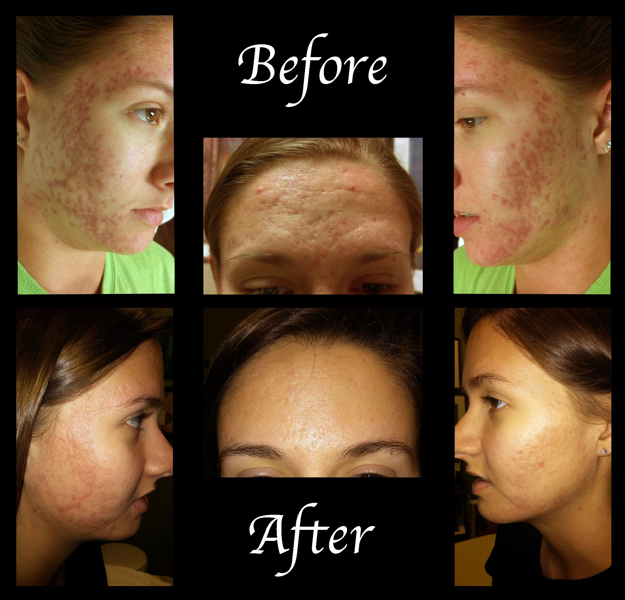 A Perfect Complexion Llc Serious Skin Care Perfect Complexion Skin Care Treatments