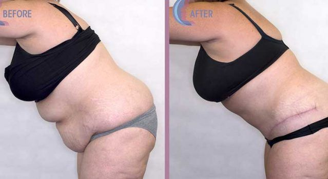 Before And After Pictures Of A Tummy Tuck Rasi Dr Colville Dr