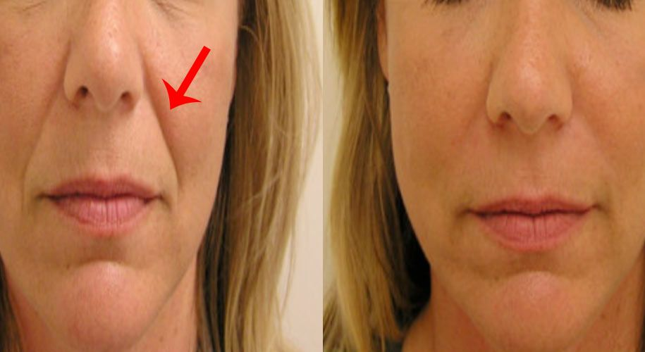 e53ffdb6869c797c880e1fc497667c59 - How To Get Rid Of A Crease On Your Nose