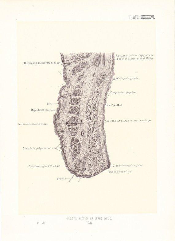1899 Human Anatomy Print Cross Section Eyelid Vintage Antique