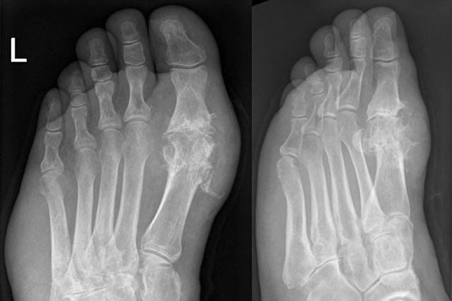 A Brief Explanation of Gouty Arthritis