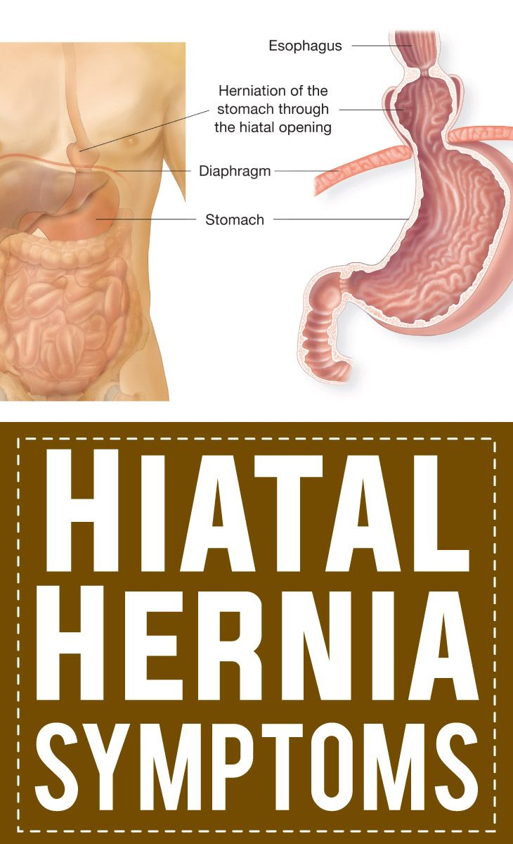 hight resolution of hiatal hernia symptoms just like gerd and acid reflux include regurgitation of stomach acid and stomach