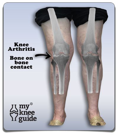 Arthritis osteoarthritis and rheumatoid arthritis severe arthritis arthritis and legs for Exterior knee pain