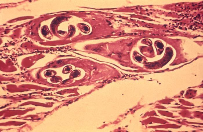 Trichinella is een geslacht uit de familie Trichinellidae, de orde Trichocephalida die behoren tot de rondwormen (Nematoden). De wormen zijn parasieten die voorkomen in het spierweefsel van zoogdieren.