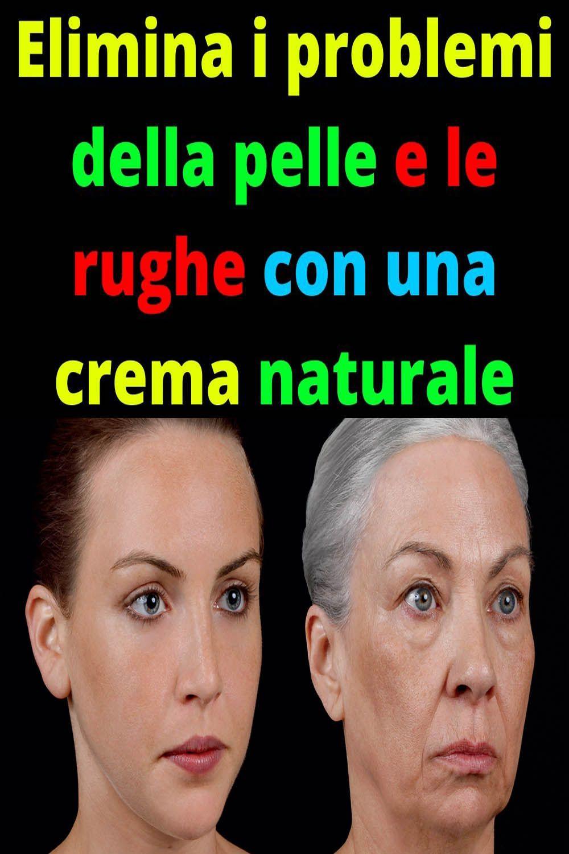 Elimina i problemi della pelle e le rughe con una crema naturale