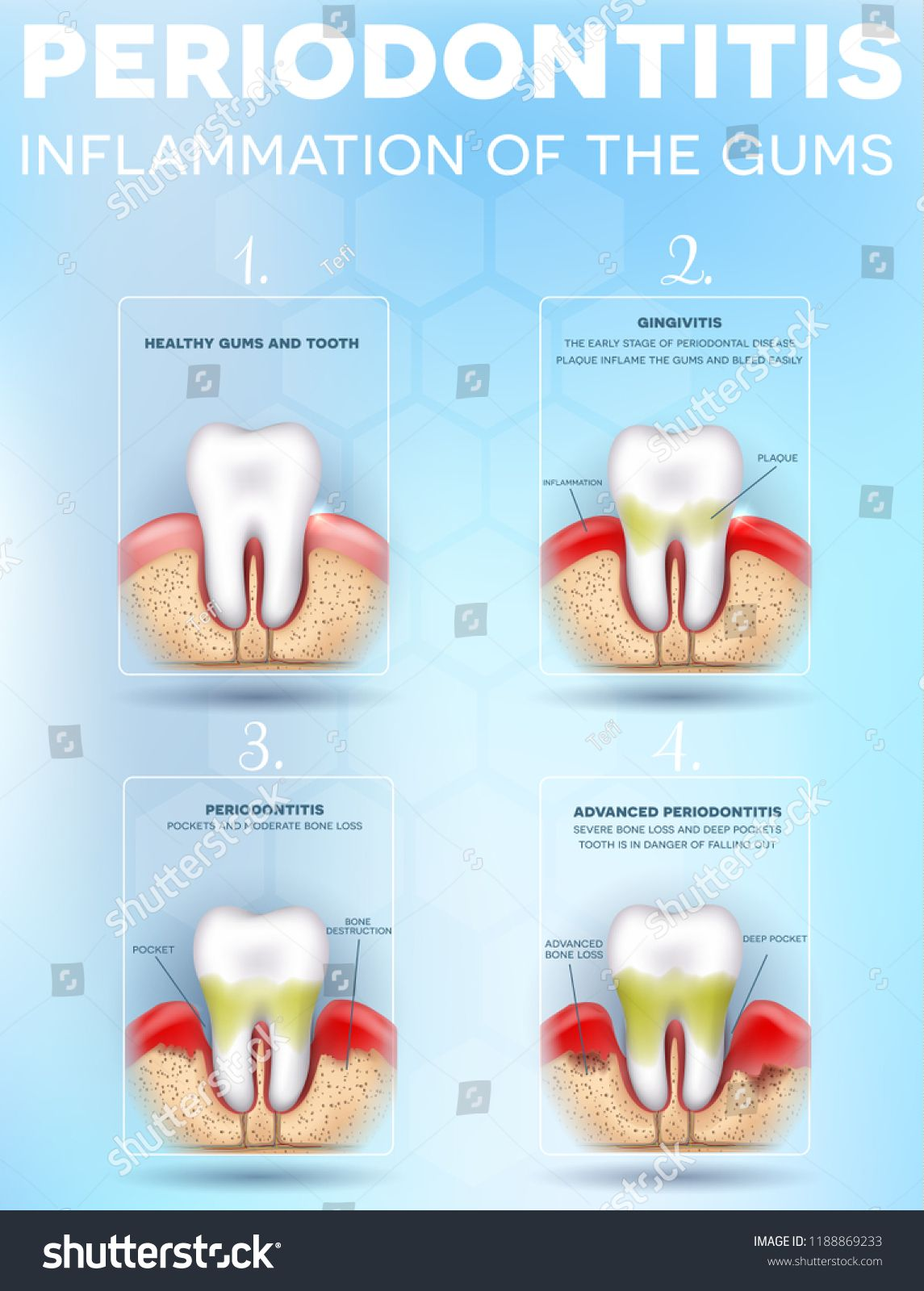 dental periodontitis, inflammation and pain of the gums stages, detailed  illustration  healthy tooth, gingivitis and at the end advanced  periodontitis,