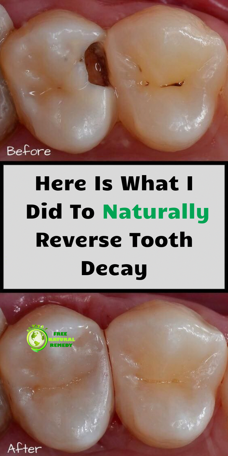 Heal Tooth Decay Reverse Cavities Reverse Cavities Naturally Heal Cavities Naturally Cavities Remedy C Tooth Decay Remedies Heal Cavities Tooth Decay