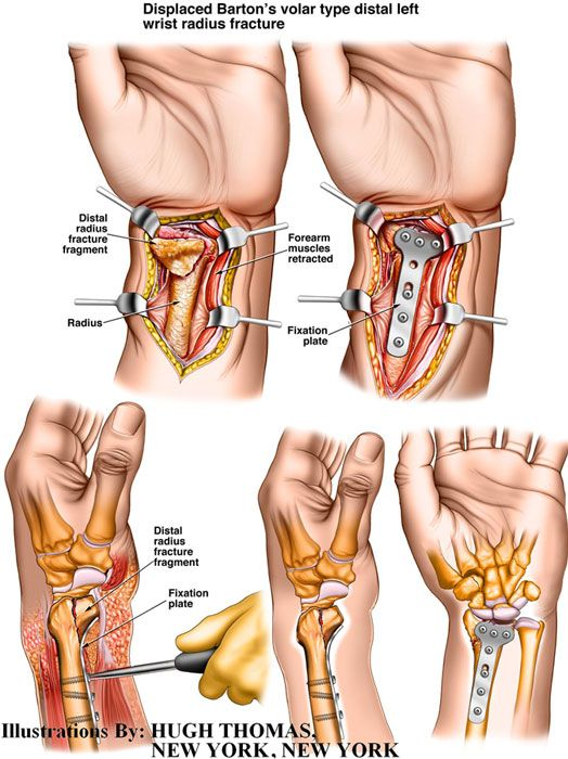 Distal radius fracture surgery medical illustration of hand and ...