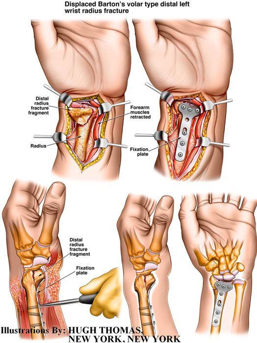 Ny Construction Medical Illustrations Distal Radius Fracture
