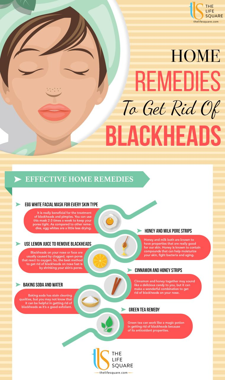 How To Get Rid Of Blackheads How To Get Rid Of Blackheads new images