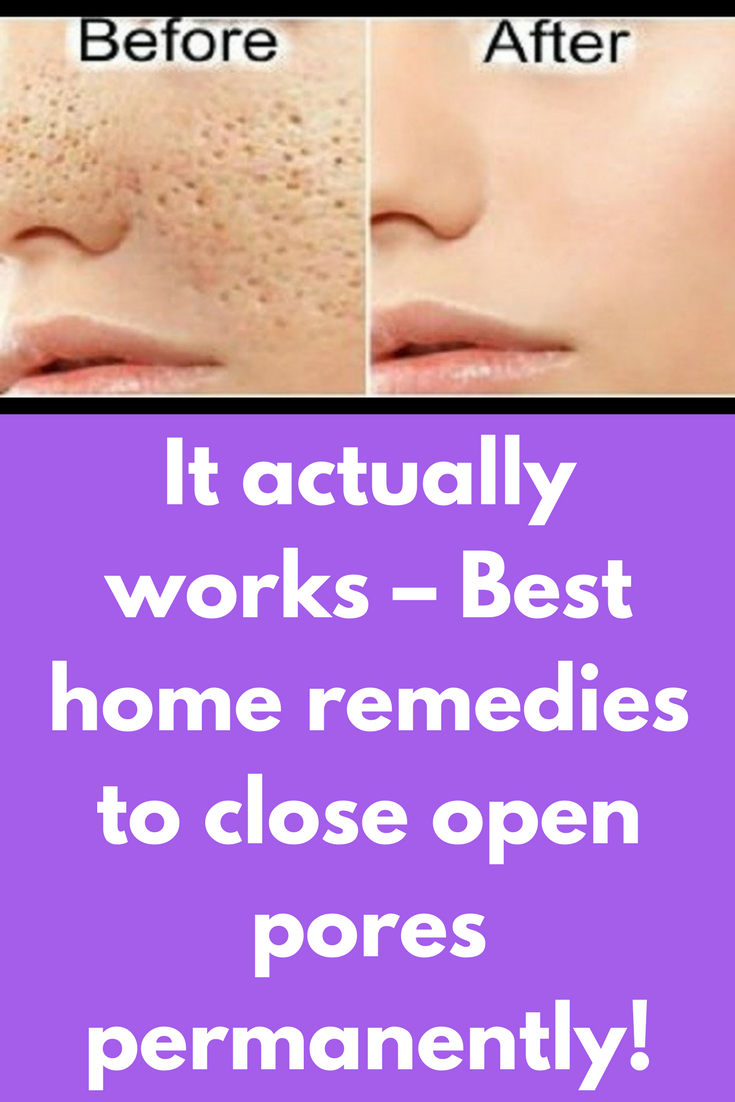 e575c7f25a1272c4b5710d930c73de2c - How To Get Rid Of Oily Face Permanently Naturally