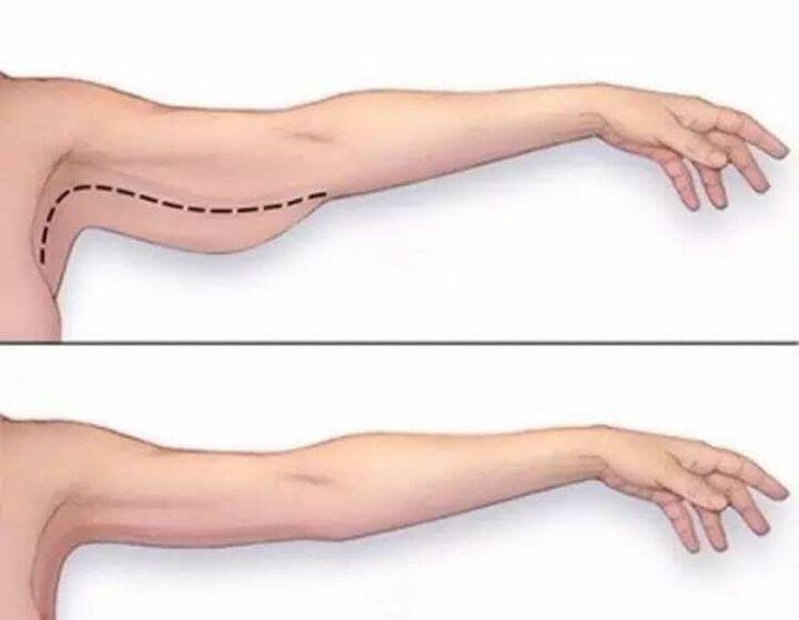 Сделать Чтобы Похудели Руки. Как похудеть в руках и в плечах
