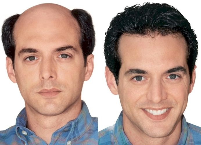 17 Best images about Advanced FUE Hair Transplant is the Future ...