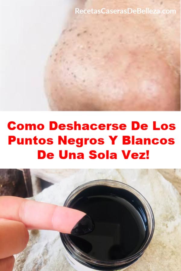Como Deshacerse De Los Puntos Negros Y Blancos De Una Sola Vez Puntos Negros Mascarillas Para La Piel Limpieza Facial Casera