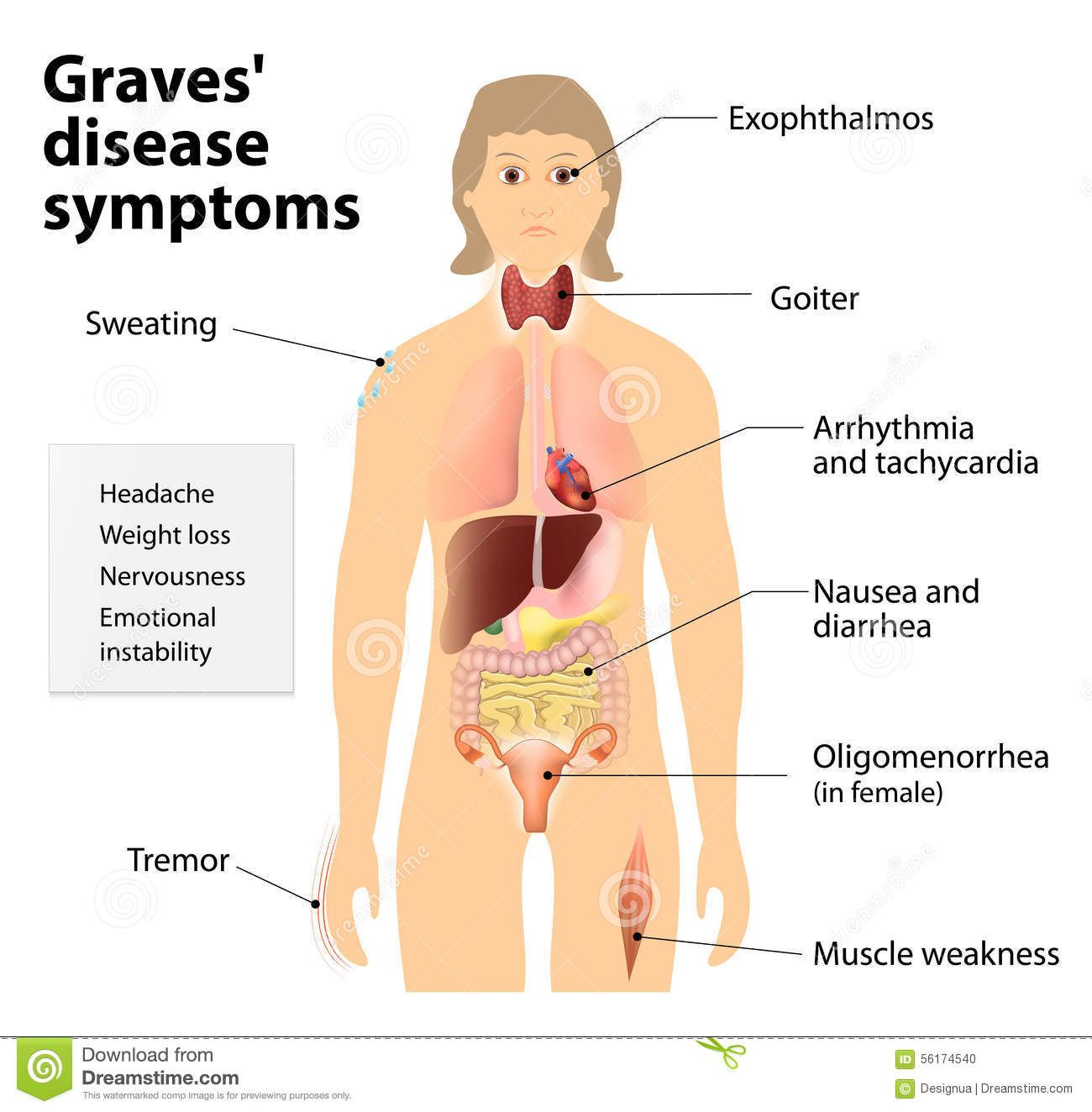 What Is Graves' Disease Causes, Symptoms, and Treatment