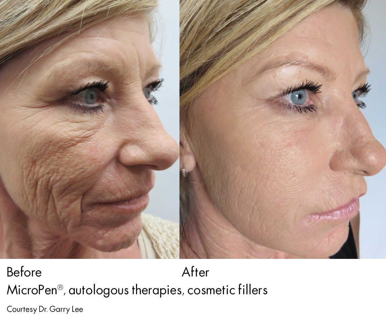 Micro Needling Everything You Ever Wanted To Know Skin Needling
