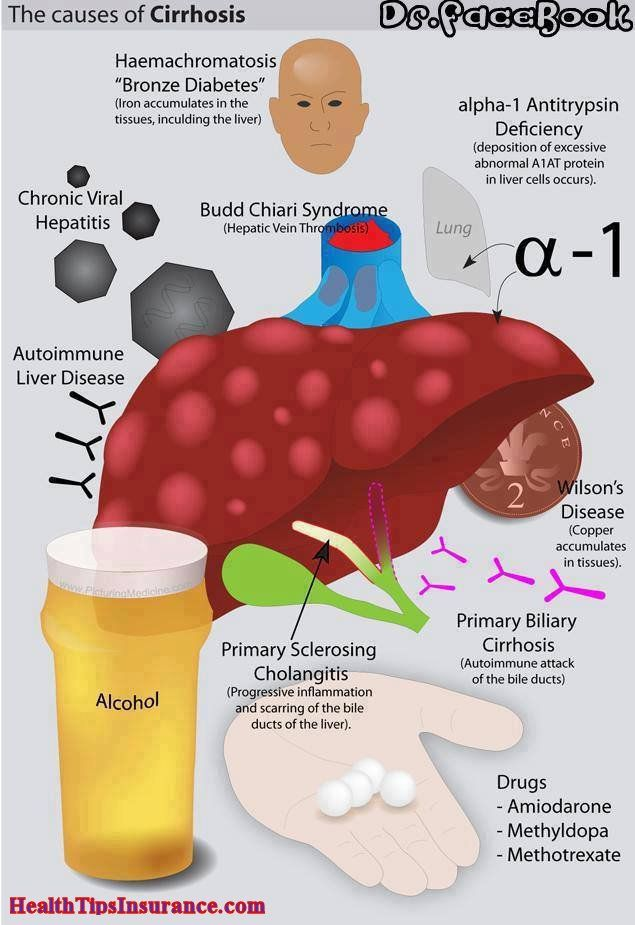 causes of cirrhosis causes of liver cirrhosis health insurance