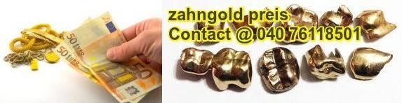Zahngold Kauf Ihr Altgold Nicht Nutzbare Gold Beim Sehr