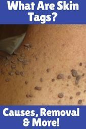 What Are Skin Tags - #skin #tags - Cara Photo Blog #skintagremedy What Are Skin Tags - #skin #tags - Cara Photo Blog #skintagremedy