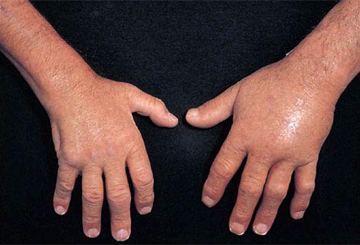 Left Ring Finger Gouty Swelling