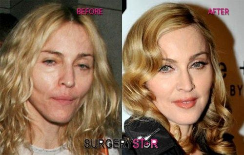 Image result for madonna cosmetic surgery