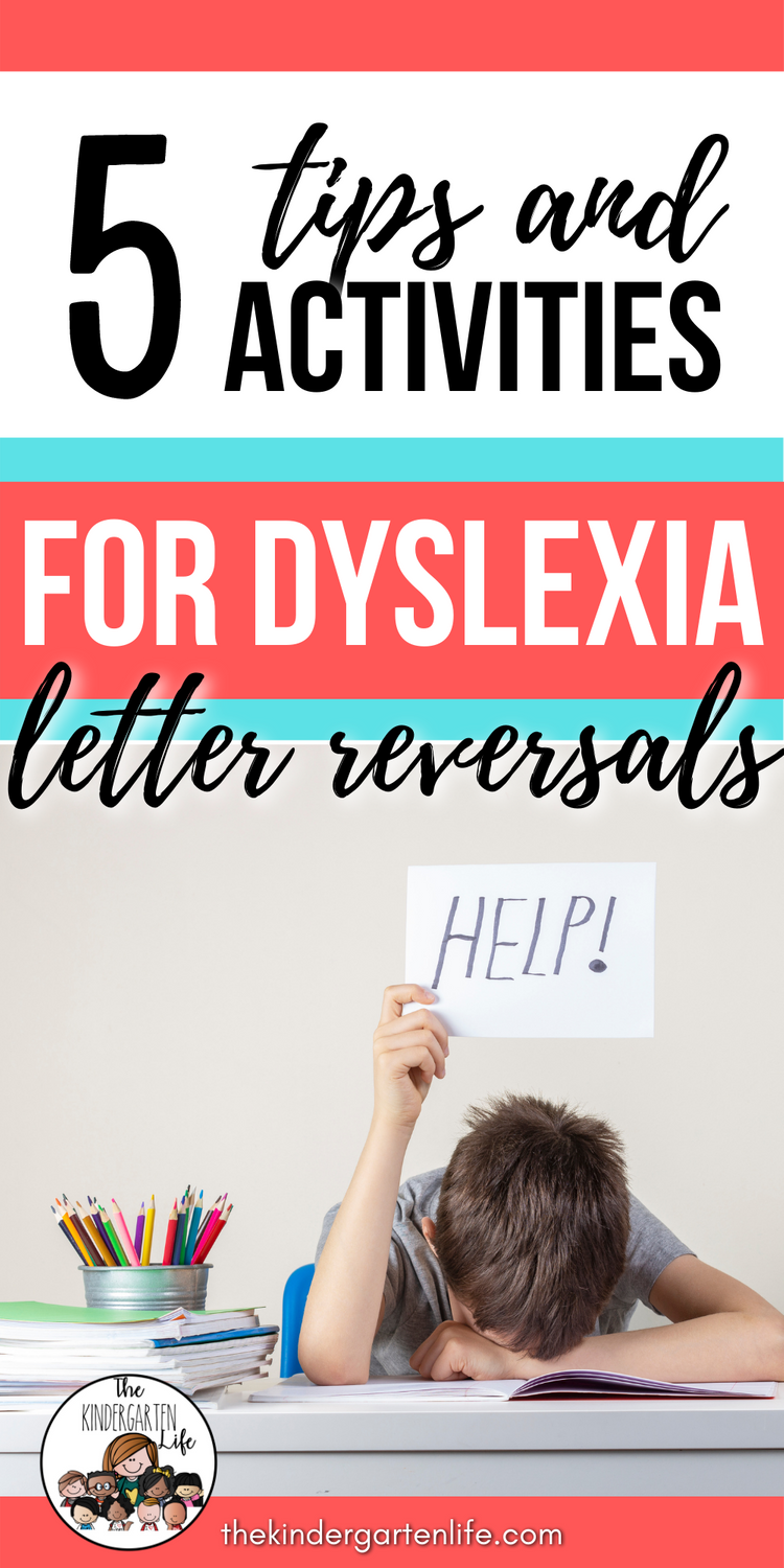 5 Tips For Dyslexia Letter Reversals In 2021 Letter Reversals Early Reading Skills Dyslexia [ 1500 x 750 Pixel ]
