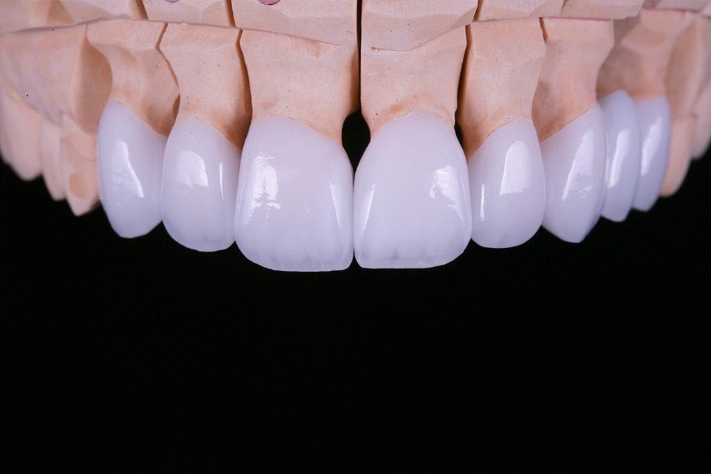 Anterior Dental Crowns Dental Crowns Dental Dental Ceramics
