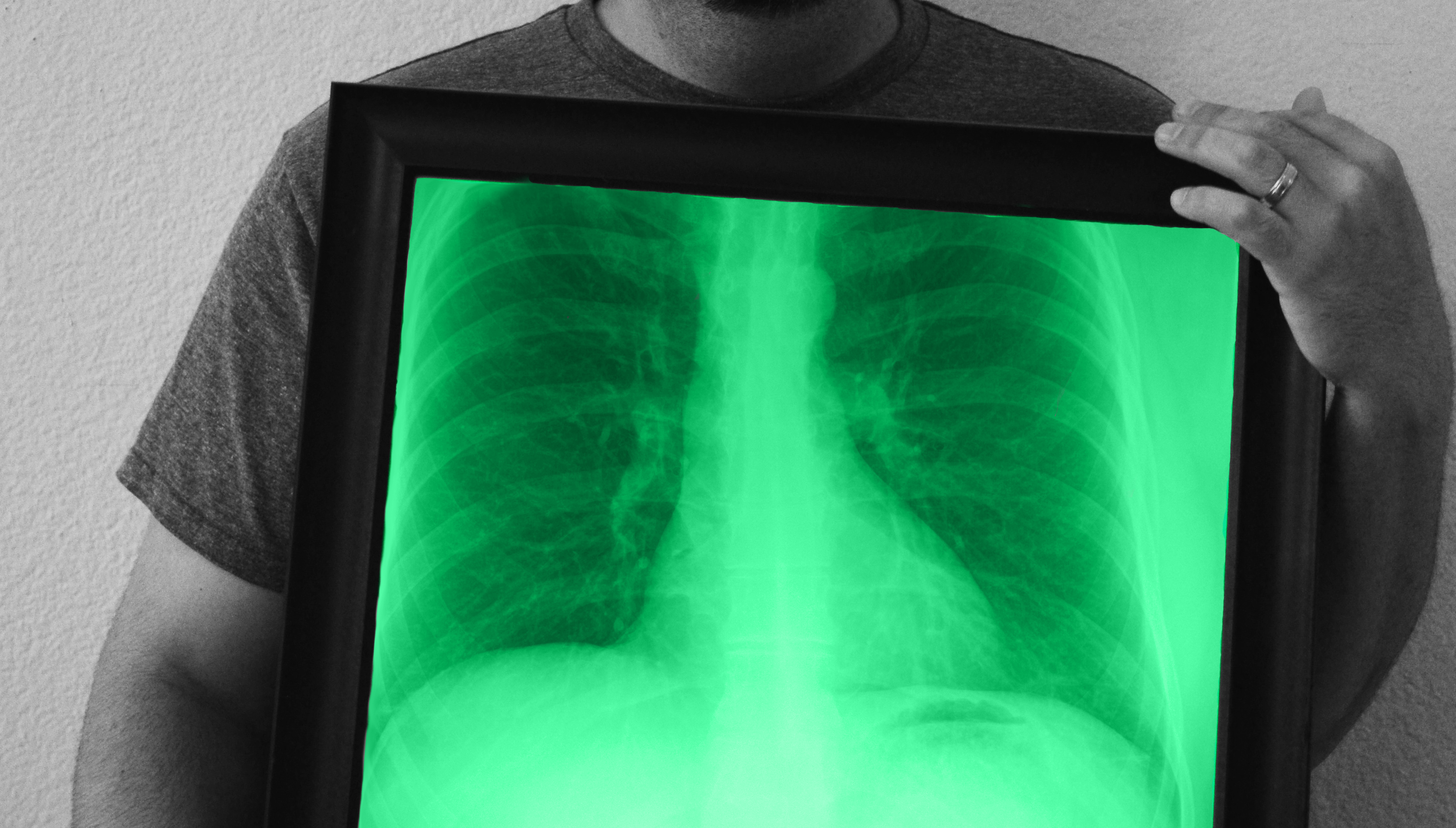 More Messing Around With Photoshop And My X Ray Illustration Art Photoshop X Ray Images