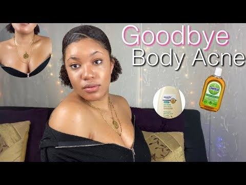 Get rid of BODY ACNE using these 2 super cheap products| NO MORE hidradenitis,…