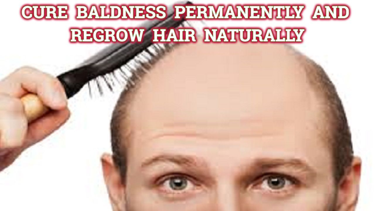 Cure Baldness Permanently and Regrow Hair Naturally See FREE Video