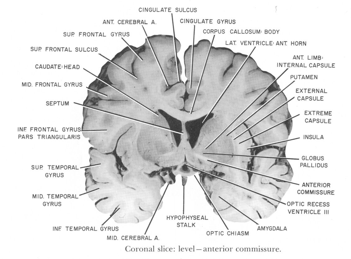 Coronal Slice At Level Of Anterior Commissure With Images